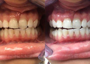 Nekintančios spalvos dantų balinimas