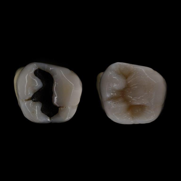 Dantų atsatymas plombomis