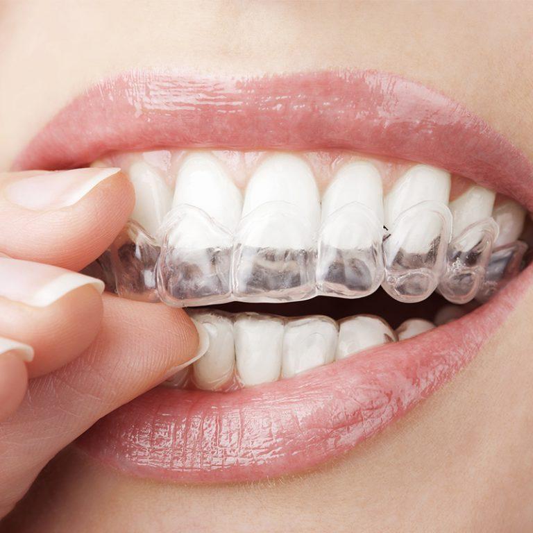 Nematomas dantų tiesinimas kapomis